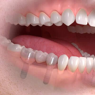 Dental Implants - implant borne multi tooth treatment