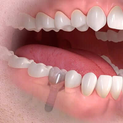 Dental Implants - implant borne single tooth treatment