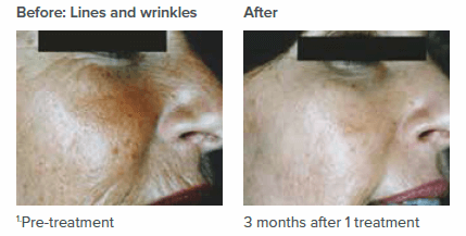 Anti-Wrinkle Treatment in Sutton Coldfield