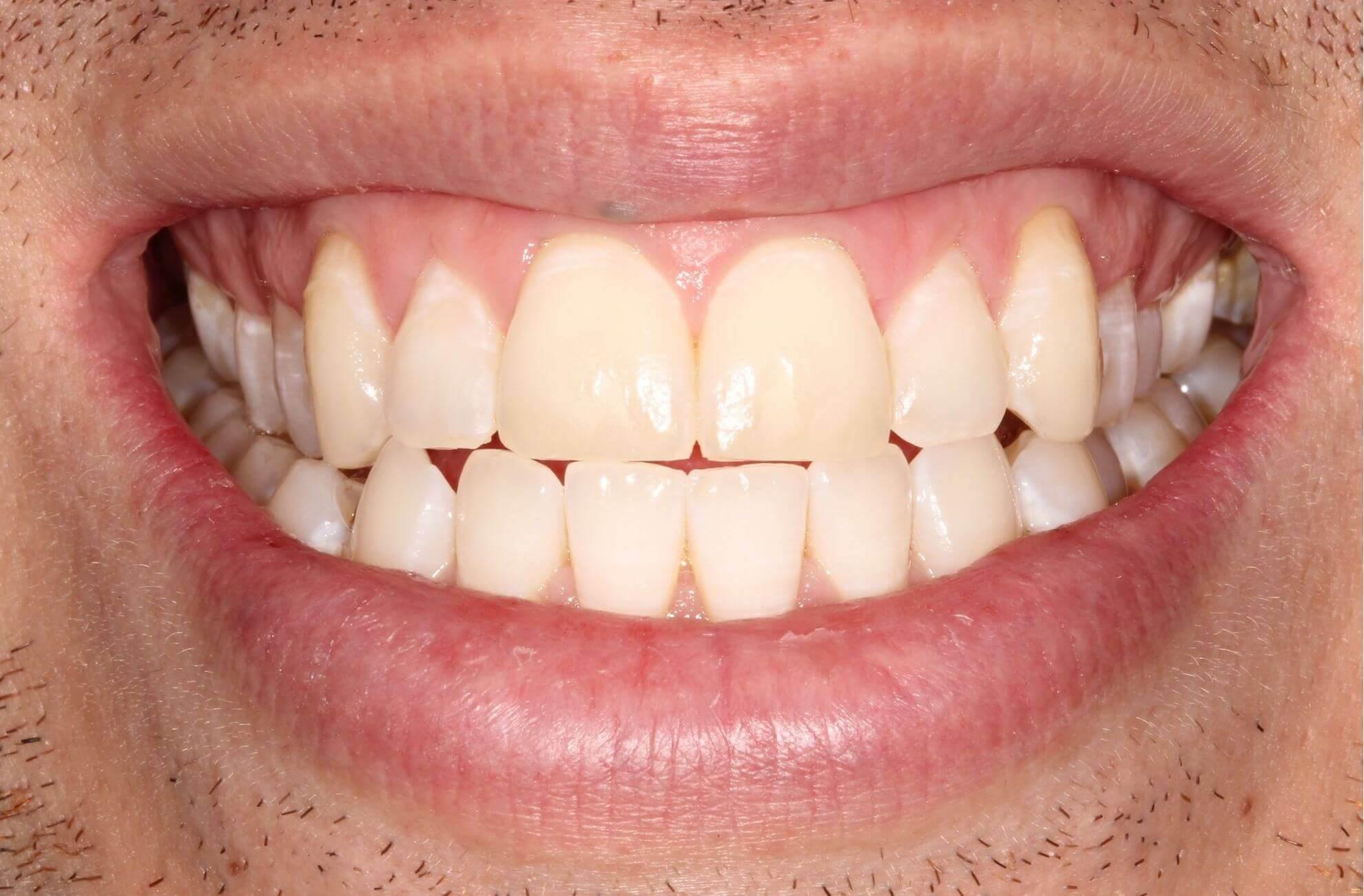 Icon - White Spot Treatment i